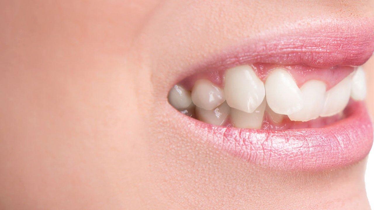 misfarger tennene